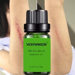 Litteken verwijdering en behandeling van acne - lavendel massage olie 10 ml