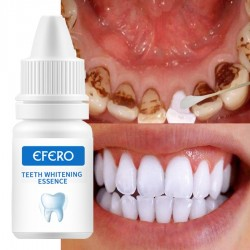 Teeth Whitening Serum - Gel - Oral Hygiene - Toothpaste