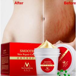 Crema eliminación de cicatrices de reparación corporal