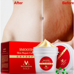Stretch marks & scars removal repair body cream