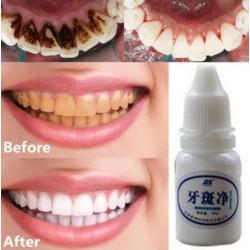 Eau blanchissante dents 10 ml