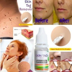 Skin tag removal - liquid for warts & skin lesions 10ml